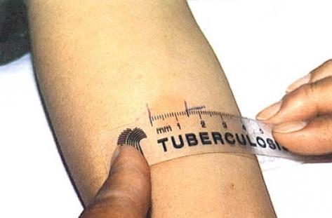 Започват безплатни прегледи за туберкулоза