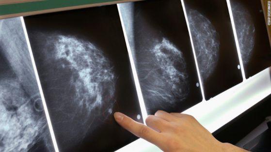 Онкорентгенологът-мамолог д-р Диков ще преглежда на 1 юни