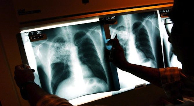 Пулмологът д-р Иво Станчев ще преглежда на 6 февруари