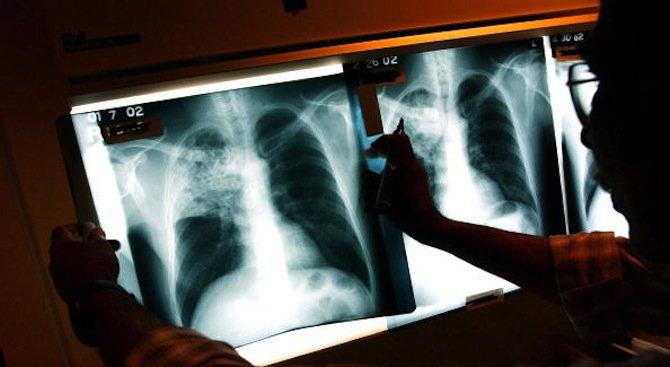 Пулмологът д-р Иво Станчев ще преглежда на 3 април