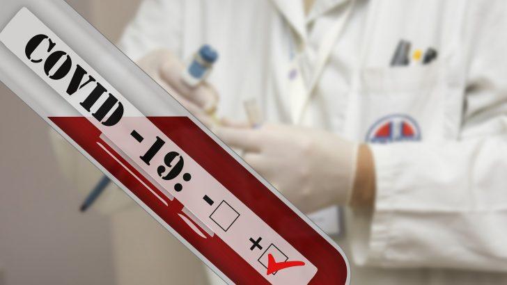 Антигенните тестове се приравняват с PCR – тестовете